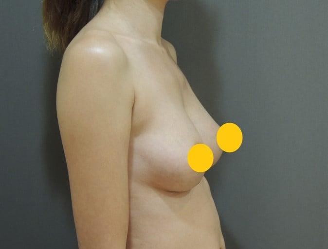 雙面複合式隆乳2.0, 二代雙面複合式隆乳