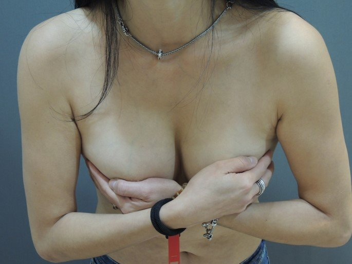 二代雙面複合式隆乳, 雙面複合式隆乳2.0版