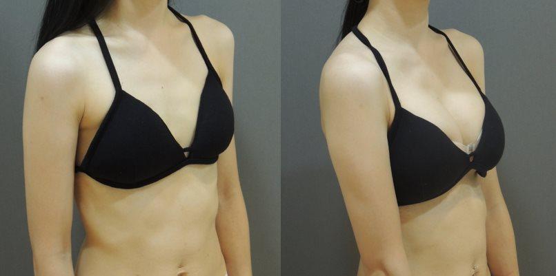 果凍矽膠隆乳, 雙面複合式隆乳