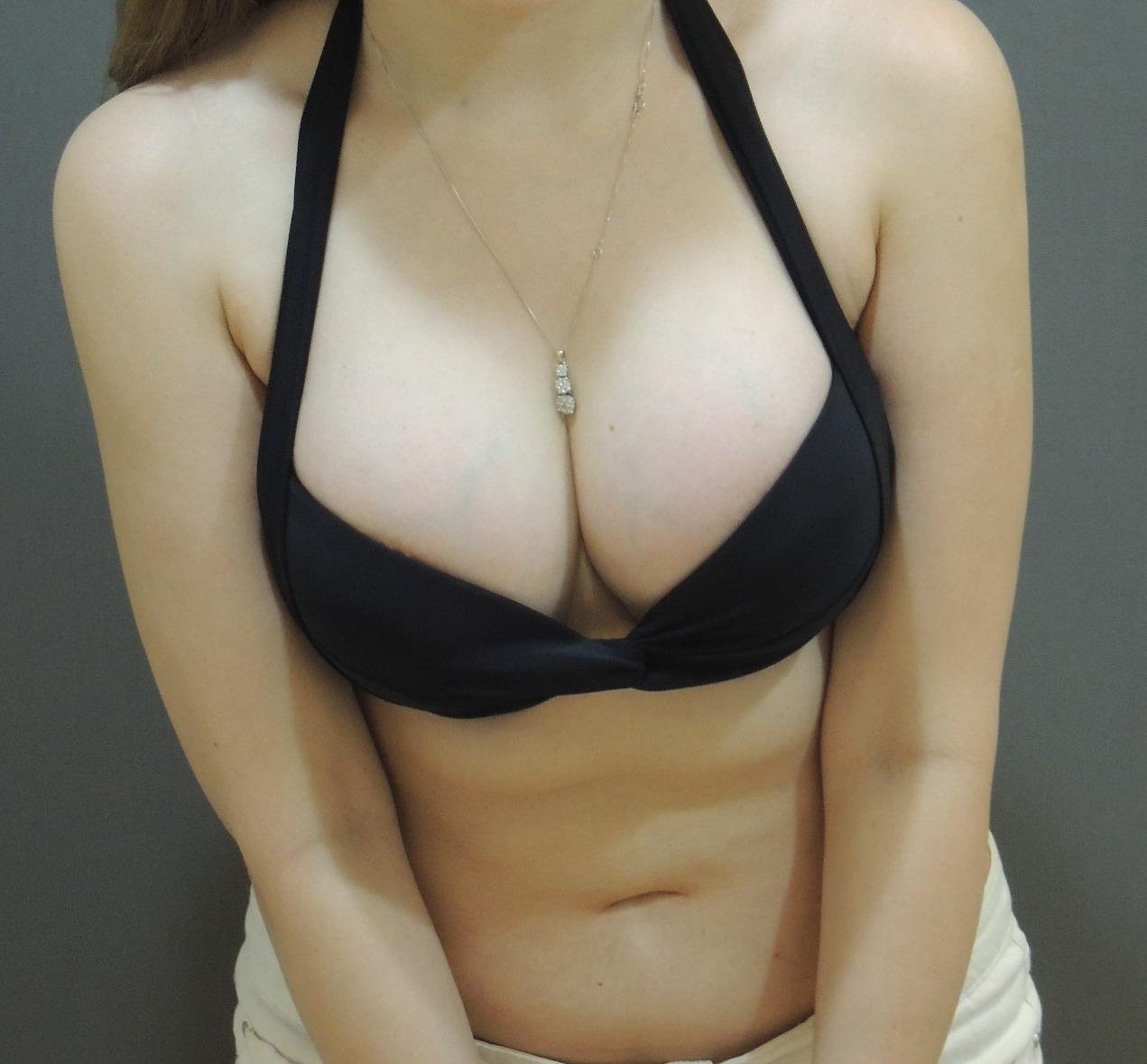 乳下緣隆乳