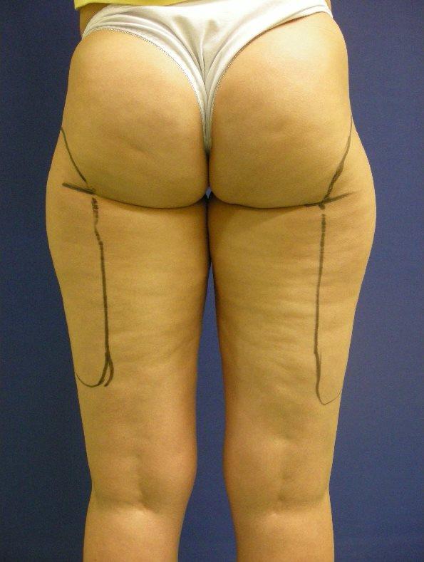 大腿抽脂, 威塑二代