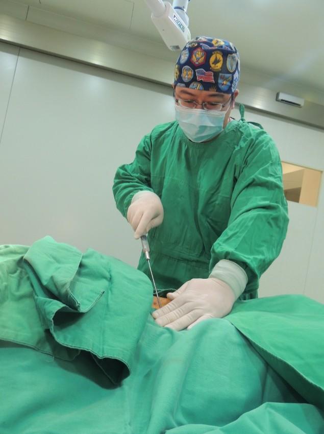 林醫師在供脂區抽出足夠的脂肪,切口僅0.3公分