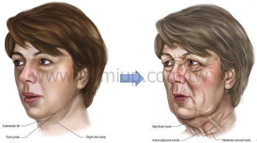臉部老化導致脂肪流失